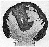 magot mâle impubère folliculinisé;réaction épithéliale